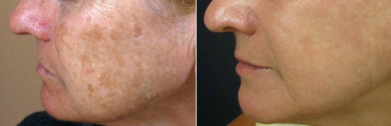 treat sun damaged skin - remove sun spots